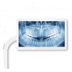 Soporte Universal Sencillo para Pantalla Unidad Dental